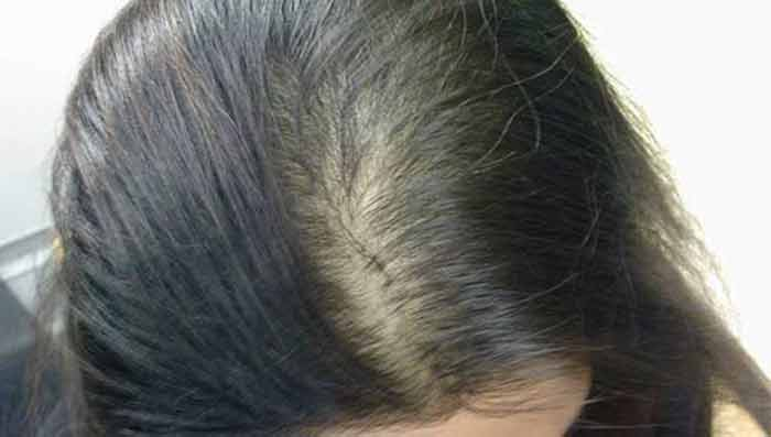 Women Suffering from Hair Loss