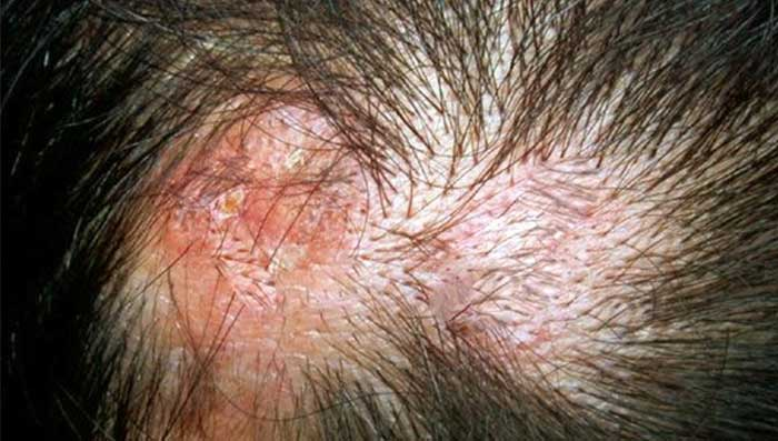 Viral & Bacterial Scalp Infection