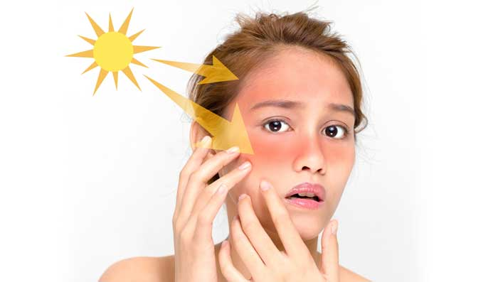 Best Home Remedies On How To Remove Tan