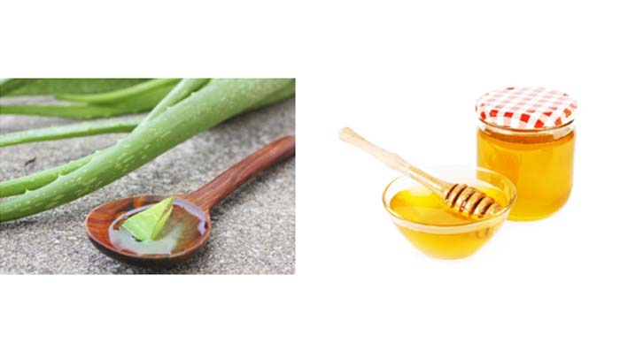 Apple Cider Vinegar, Honey & Aloe Vera to Cure Dandruff