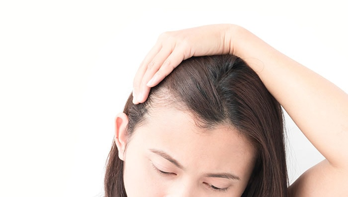 how to prevent hair fall naturally at home