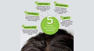 5 Reasons Why You Have Dandruff