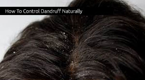 How To Control Dandruff Naturally